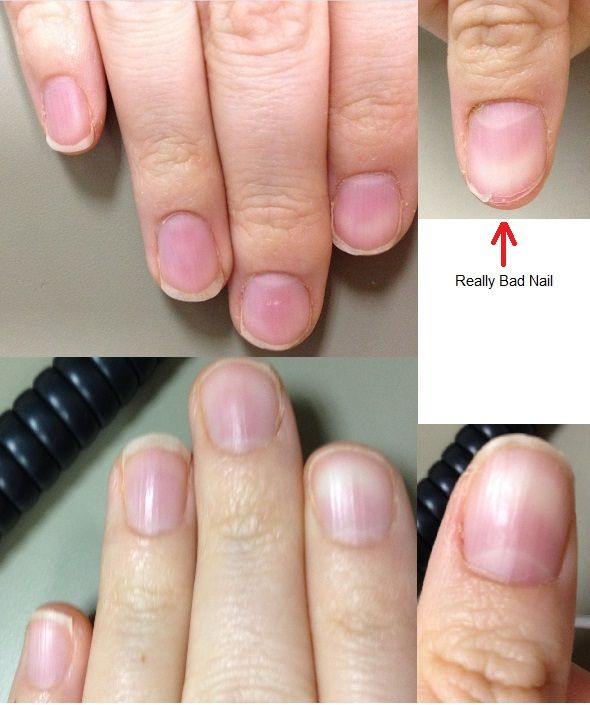 Can a Manicure Fix This?