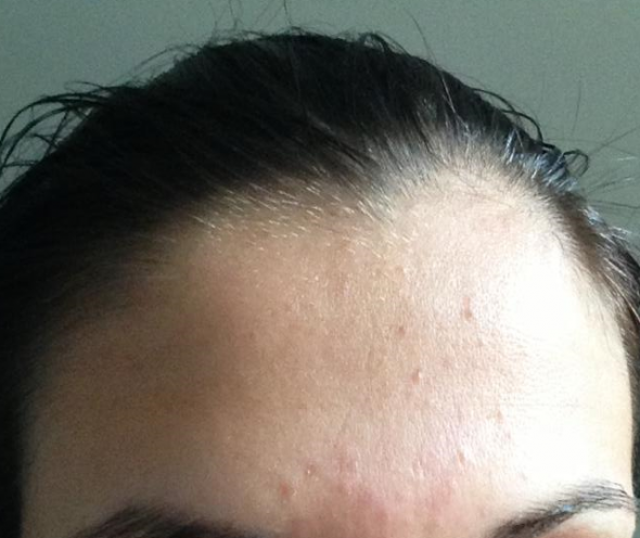 How To Get Rid Of Subclinical Acne On Forehead Naturally